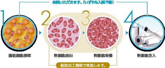 1.脂肪細胞採取(来院いただきます。(いずれも入院不要)) / 2.幹細胞抽出(細胞培養機関で実施します。) / 3.幹細胞培養(細胞培養機関で実施します。) / 4.幹細胞注入(来院いただきます。(いずれも入院不要))